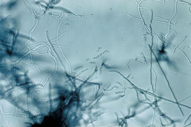 bakterie glebowe korozja